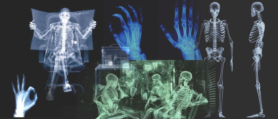 рентген 04